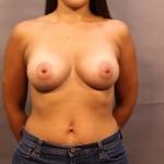 2 Breast Augmentation <br/> Available in Dallas, TX Dallas Plastic Surgeon