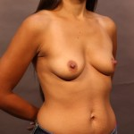 24-hour Breast Augmentation Surgery Before Photo