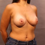 24-hour Breast Augmentation Surgery After Photo