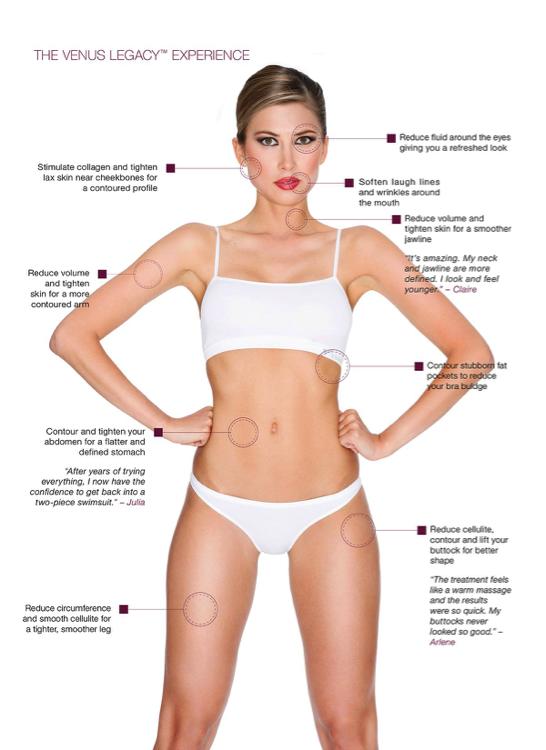 1-2 Venus Legacy™ Dallas Plastic Surgeon